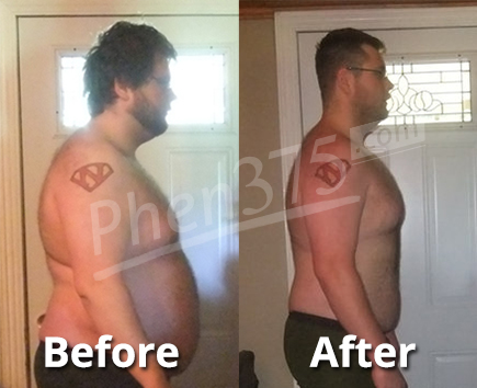 Phen375 Before and After Pic